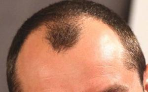 Hair Fall and Ayurveda