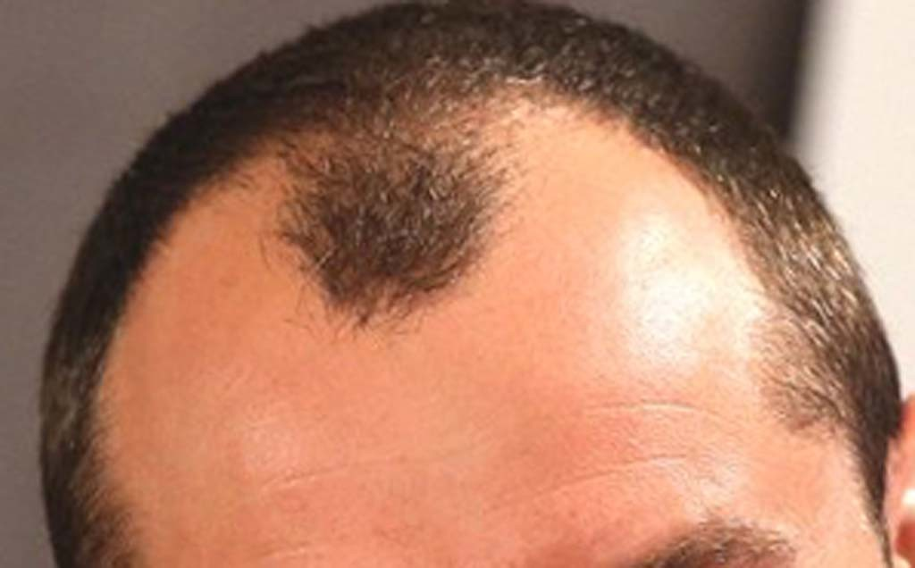 ayurveda-hair-fall-control